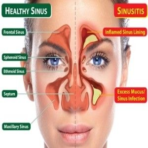 6 Best Herbal Remedies for Sinusitis - Different Herbal Remedies For Sinusitis Treatment   Ayurvedic Natural Cure Supplements