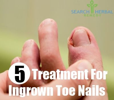 how to fix a ingrown toe nail at home