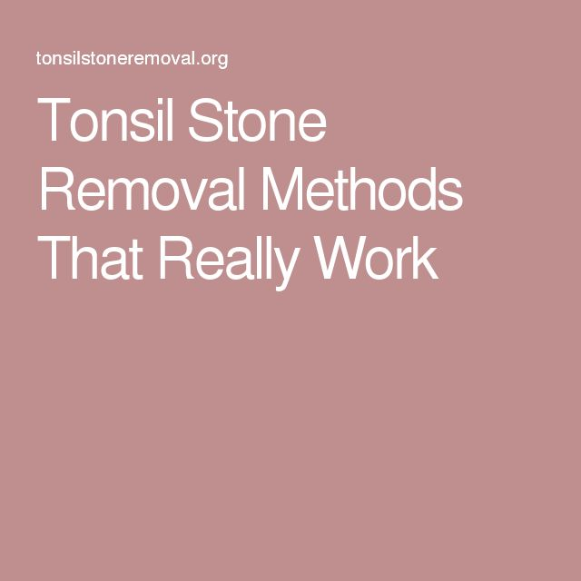 Tonsil Stone Removal Methods That Really Work