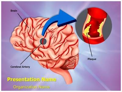 34 best brain powerpoint templates human brain powerpoint check out our professionally designed brain hemorrhage ppt template download our brain toneelgroepblik Gallery