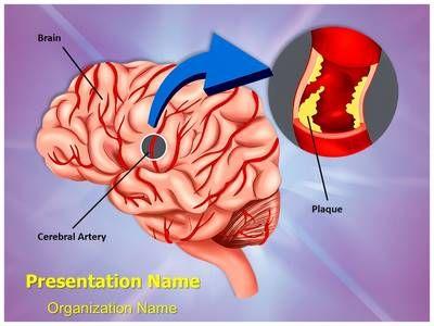 Более 25 лучших идей на тему «Brain hemorrhage» на Pinterest - brain powerpoint template