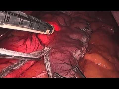 Laparoscopic Sleeve Gastrectomy | Riverside Surgical & Weight Loss Center, llc