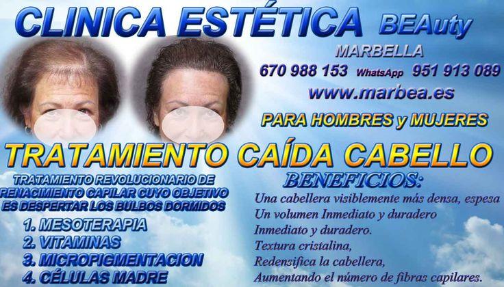 Micropigmentación capilar COIN o en Marbella tatuaje Torremolinos | Moj wyjatkowy blogos