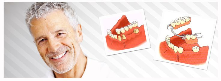 #Protesis dental #fija y protesis dental #removible - CLVM