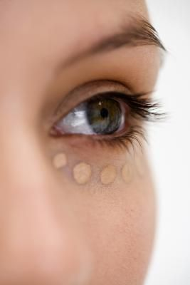 Vitamins & Minerals That Eliminate Under-Eye Circles