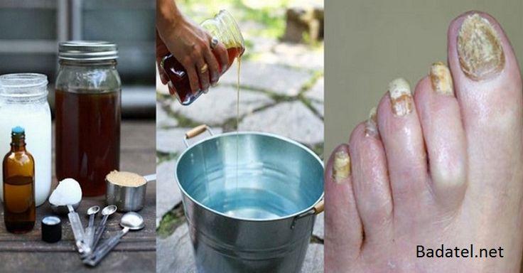 Tento super jednoduchý recept vás navždy zbaví mykózy nechtov na nohách