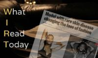 WIRT: A Canadian Model With VITILIGO Is Changing the Face of Fashion Today I came across a few articles online about a Canadian model who has Vitiligo – the skin disease that probably the late Michael Jackson suffered from...