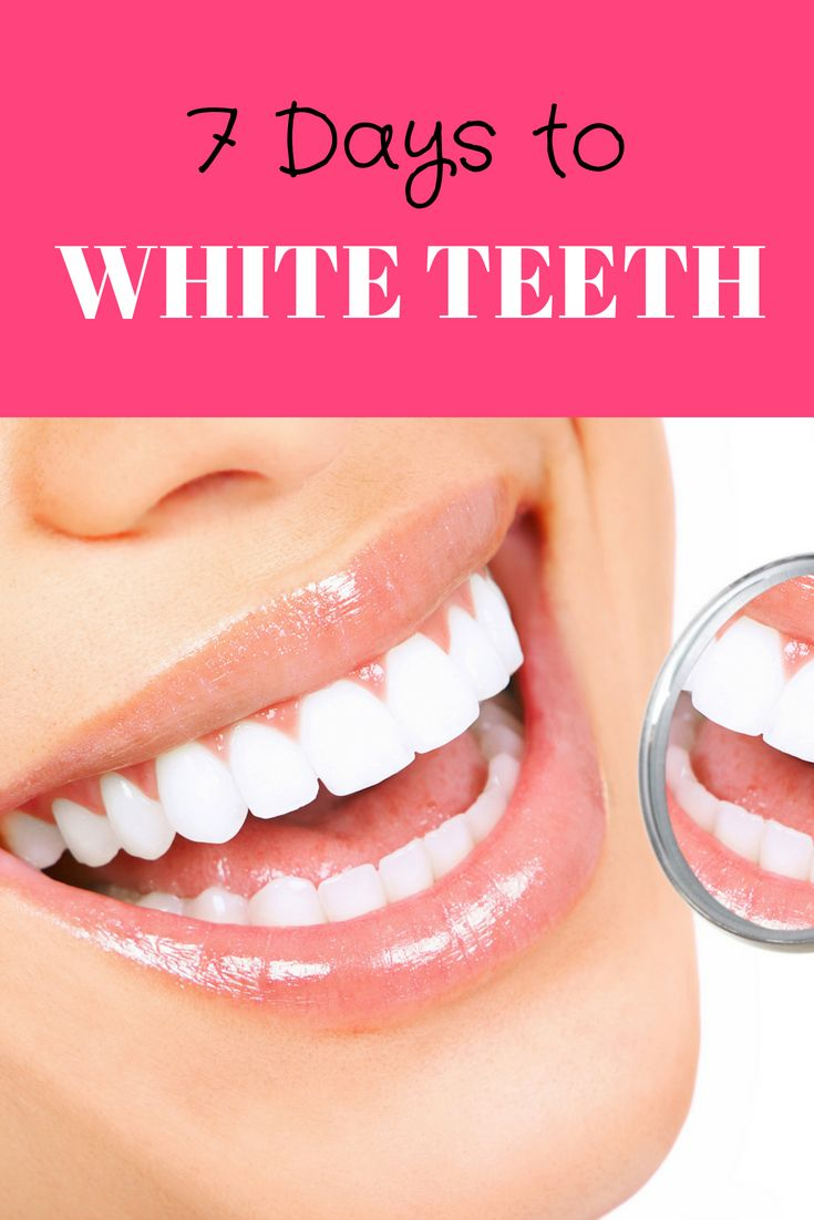 Check out my at home 3 step teeth whitening guide, teeth whitening at home DIY, …