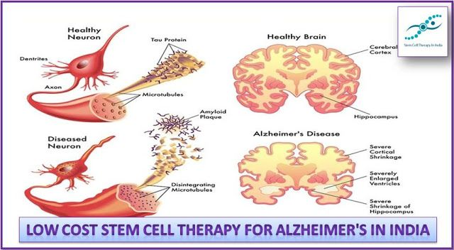 stem cells benefiting alzheimers Alzheimer's disease: how could stem cells help  many scientists believe that alzheimer's patients will benefit from stem cells in a different way before the .