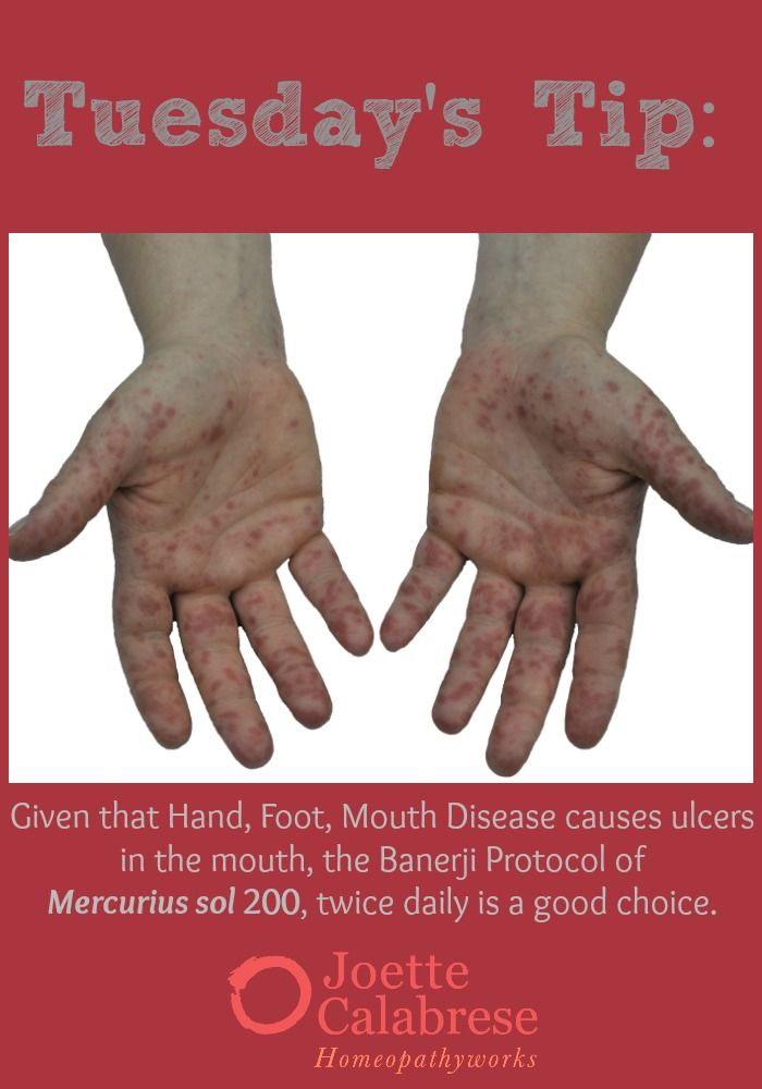 This tip gives you the Banerji Protocol for HFMD, but be sure to follow through to my blog for remedies for accompanied symptoms as well. ~joettecalabrese.com