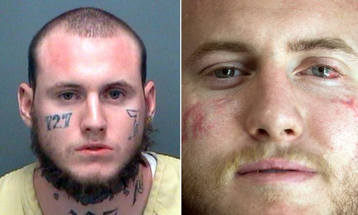 Florida man uses WELDING TOOL to remove gang tattoos on his face