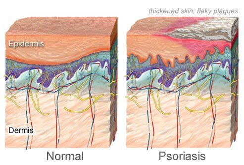 Symptoms of psoriasis <<< the most common symptoms >>>
