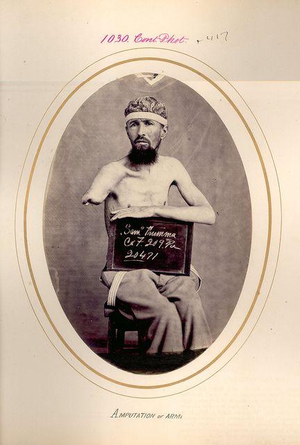 THUMMER, SAMUEL  AMPUTATION OF ARM. [gangrene]  Rank CPL, Company F, Regiment 209, State PENN, MOS, VOLUNTEERS,  Battle PETERSBURG, VA [Civil War]  Date of Injury 2 APR 1865