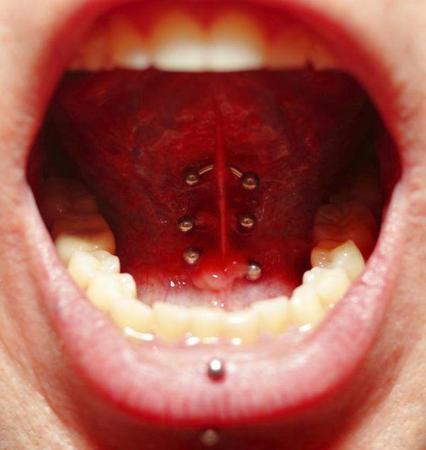 Piercing En La Lengua Como Cuidar Tipos Y Contraindicaciones