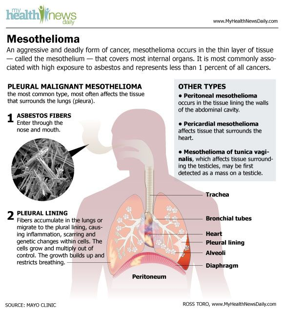 Mesothelioma is an aggressive form of cancer that occurs in a thin layer of tissue that covers most internal organs.<br />