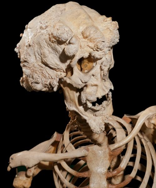 The skeleton of Joseph Carey Merrick - image Ray Crundwell, Queen Mary University of London