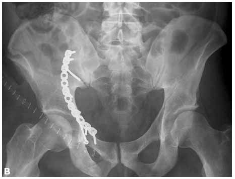 1000+ images about Open reduction internal fixation on Pinterest ...