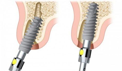 Cấy ghép implant bị thất bại chủ yếu là do hiện tượng tiêu xương gây nên và kỹ thuật phục hình của nha sỹ không tốt cũng như chất lượng trụ răng không tốt.
