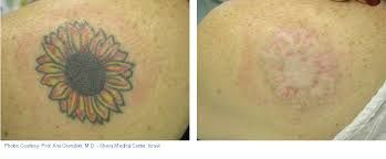 Side effects that may arise from tattooing is a risk of infection.