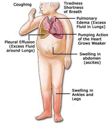 CHF symptoms | What are the Signs & Symptoms of Heart Failure?