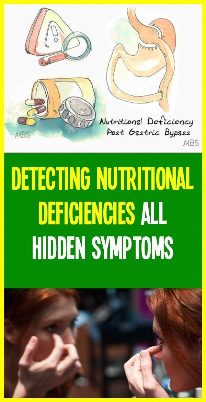 Detecting Nutritional Deficiencies All Hidden Symptoms Of Nutritional Deficiencies In 2020 Nutritional Deficiencies Nutrition Nutrient Deficiency