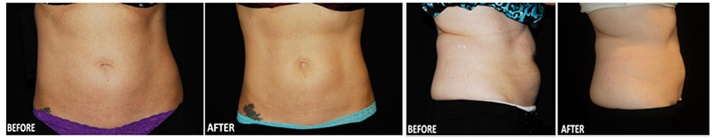Lébo Skin Care Center : Coolsculpting by Zeltiq