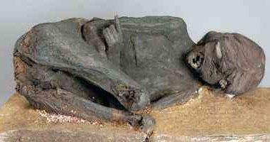 *Cabeça de mulher inca esmagado* *Mistério múmia* A história começou na década de 1890, quando a princesa Teresa da Baviera adquiriu duas múmias durante uma viagem à América do Sul. Um deles foi logo perdido, mas o outro de alguma forma fez o seu caminho para a Baviera State Archaeological Collection, em Munique. #NotíciasEstranhas #FatosCuriosos #Arqueologia