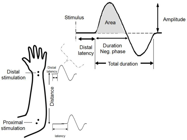 25+ best ideas about Nerve conduction study on Pinterest ...