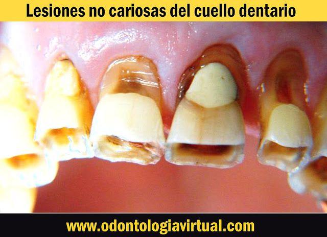 PDF: Lesiones no cariosas del cuello dentario | Ovi Dental