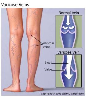 Learn more from WebMD about the causes of varicose veins, a problem that affects up to 60% of all Americans.