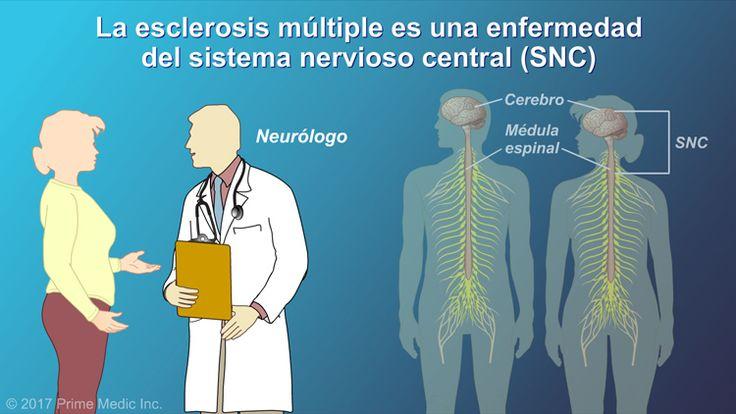 La esclerosis múltiple, o EM, es una enfermedad del sistema nervioso central. Eso quiere decir que generalmente la diagnostica un especialista llamado neurólogo.slide show: el diagnóstico de la esclerosis múltiple. en esta presentación de diapositivas se describen las herramientas y pruebas utilizadas para diagnosticar la esclerosis múltiple em, así como los síntomas que podrían indicar la presencia de em. además, en la animación se explican los cuatro tipos diferentes de em: em…