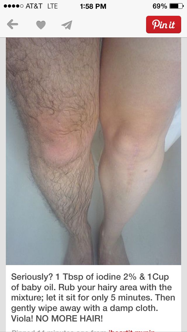 Can we appreciate that this poor man has donated his leg for science? OR... A VERY HAIRY WOMAN???
