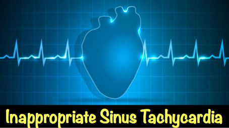 Inappropriate sinus tachycardia http://blog.myheart.net/2014/11/30/inappropriate-sinus-tachycardia/