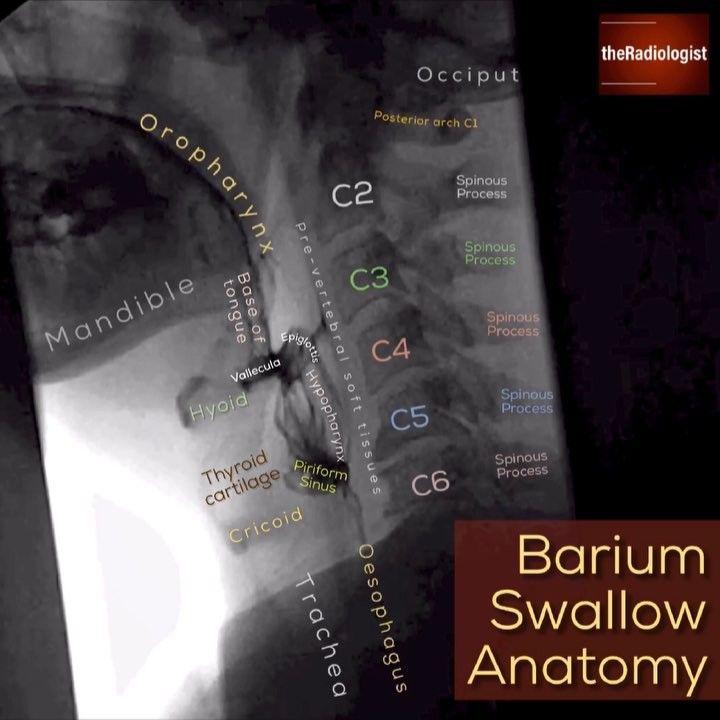 Pin On Radiology Anatomy