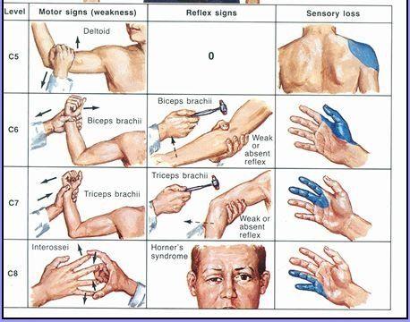 Neuro - Block1 - Practice Test flashcards | Quizlet
