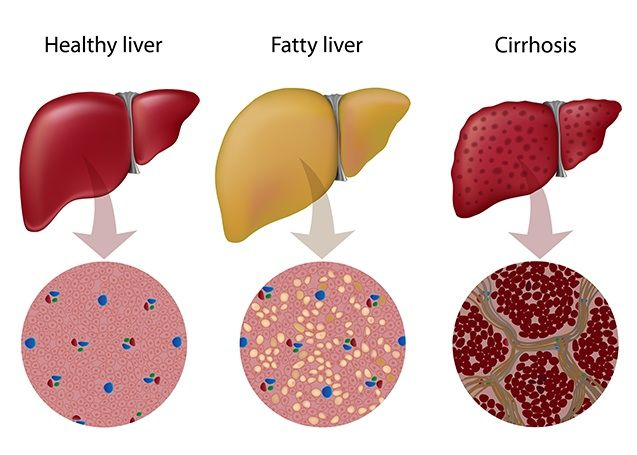 The Symptoms of Fatty Liver and the Precautions You Need to Take before it Is too Late!