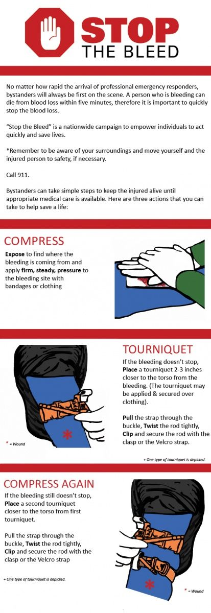 Stop the Bleeding Infographic. Know these basic actions to stop blood loss: compression, application of a tourniquet, and compression again. Additionally, you can use Quick clotting bandages, marketed as Quikclot, which are used by the US military to stop major bleeding by clotting blood faster than the body can by itself, more here: http://insidefirstaid.com/personal/first-aid-kit/quickclot-and-celox-the-best-hemostatic-agents #quikclot #blood #loss #bleeding #first #aid #celox