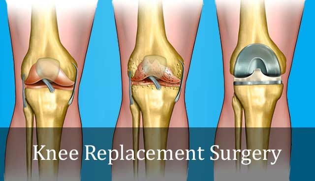 Total knee replacement or TKR or Total Knee Arthroscopy is a surgery for replacing an arthritis knee with artificial joint.