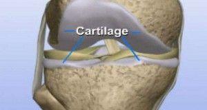 Voici comment régénérer le cartilage du genou