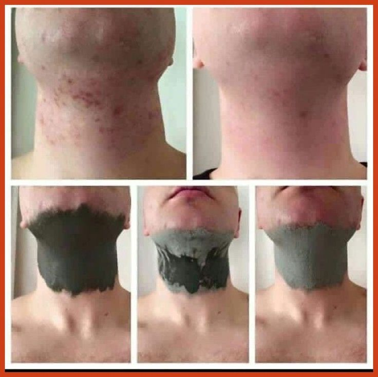 Acne Scar Removal - Laser Acne Scar Removal - Removing Acne Scars ** Learn more by visiting the image link. #plasticsurgery #acnefacemask