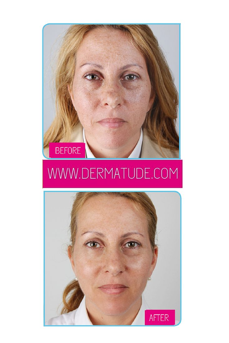 #Dermatude Before and After Facial