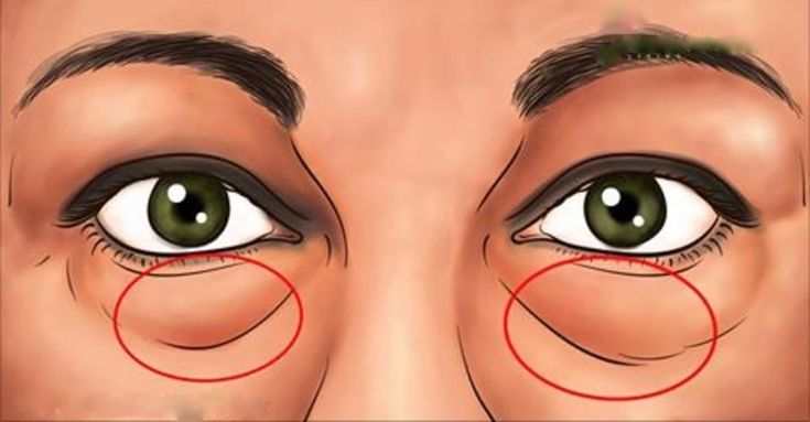Os Melhores Tratamentos Naturais Para Eliminar As Bolsas Abaixo Dos Olhos! - Leia e Descubra!