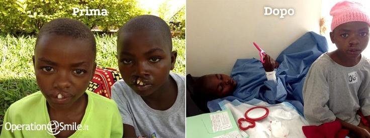Doppio sorriso per i gemelli Dany e Acbar, 12 anni, Rwanda. Eccoli qui, prima e dopo l'intervento!  In Ruanda tantissimi bambini aspettano ancora il nostro aiuto!  Ti piacerebbe contribuire?  Scopri come, clicca sulla foto