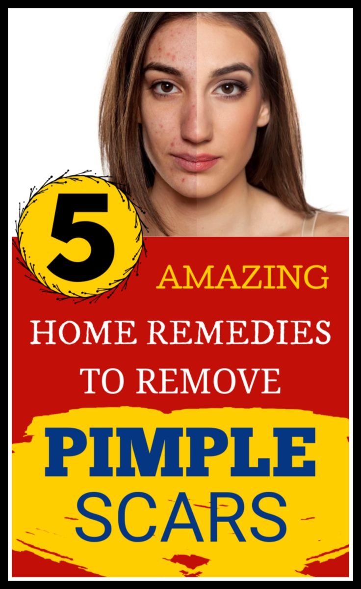 Spot treatment for pimple scars – Just apply this lotion on your scars to erase them