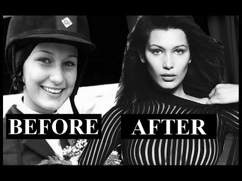 Bella Hadid before and after surgery