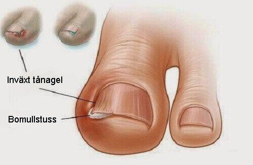 Eftersom många inte vet hur de ska behandla dem vill vi här dela med oss av sex gamla huskurer för att behandla inåtväxande tånaglar.