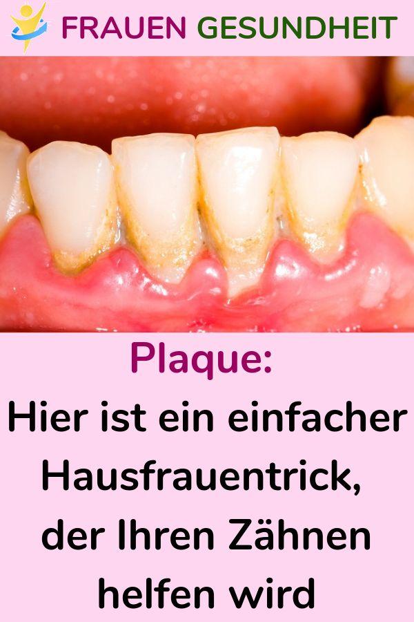 Plaque: Hier ist ein einfacher Hausfrauentrick, der Ihren Zähnen helfen wird