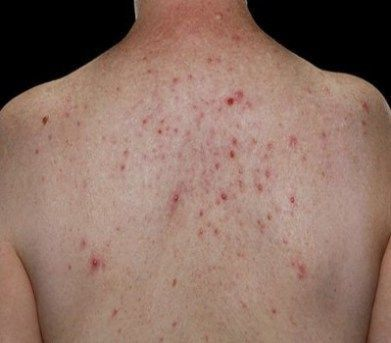 How To Get Rid Of Back Acne Back Acne Is Also Popularly Known As Bacne Like Facial Acne Back Acne Is Als Chest Acne Remedies Back Acne Treatment Chest Acne