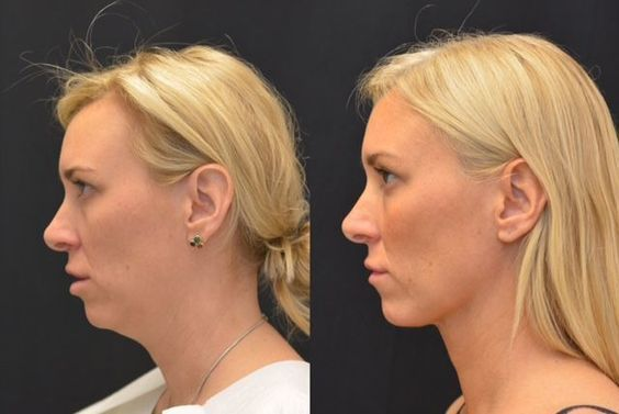 A Tighter #Neck Produces a Younger Face - #Skin that sags beneath your chin can make you look older and heavier. #Plastic_surgery to reduce sagging skin is an easy fix to this issue and leave you looking younger and like you just lost some weight.