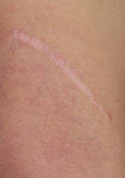 15 best images about Skin Marks, Colorations, and Scars on ...